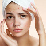 Best Home Remedies You Must Try To Get Rid ofPimples