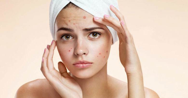 Best Home Remedies You Must Try To Get Rid of Pimples